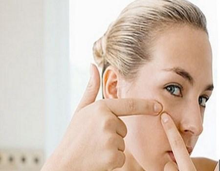 Novias con acné